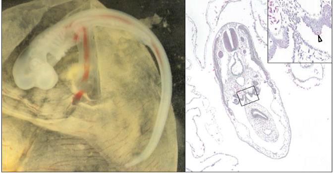 Mise en place des ébauches gonadiques chez l'embryon de petite roussette - A. Gautier