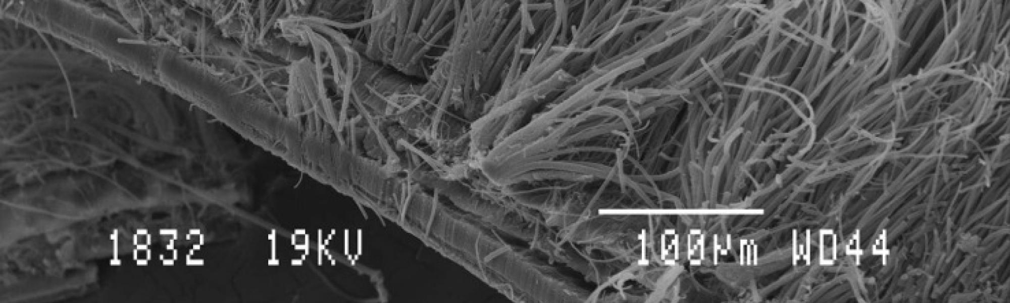 Face interne de la cavite branchiale de Rimicaris exoculata